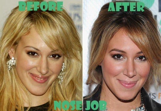 Haylie Duff Before Plastic Surgery 1