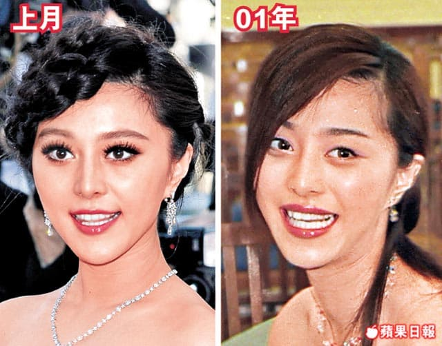Joey Yung Before Plastic Surgery 1