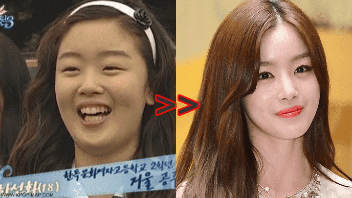 Kim Ji Won Plastic Surgery Before 1