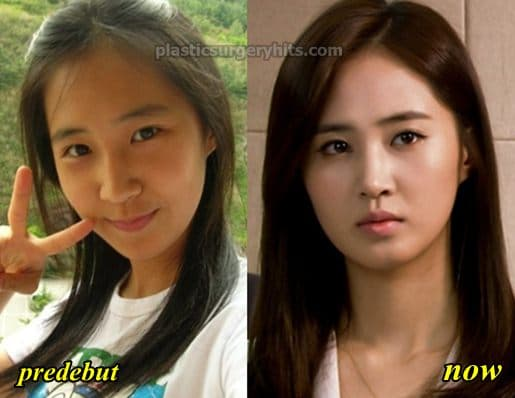 Snsd Before And After Plastic Surgery 1