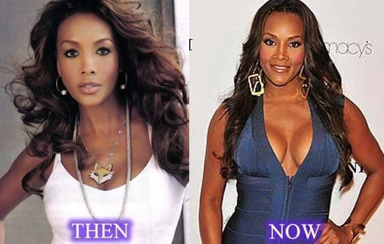 Vivica Fox Before Plastic Surgery 1
