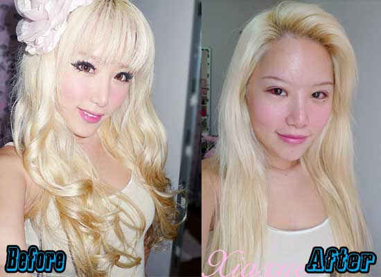 Xiaxue Before Plastic Surgery 1