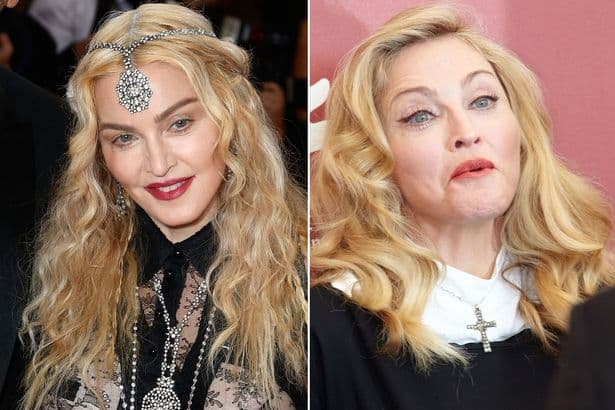 Madonna 2000S Before Plastic Surgery 1