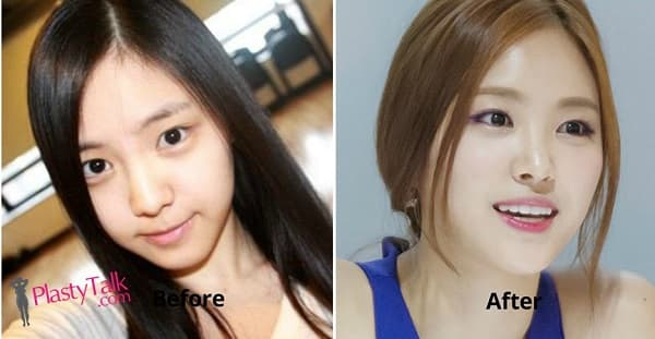 Naeun Before Plastic Surgery 1