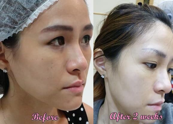 Namu Plastic Surgery Before And Afte 1