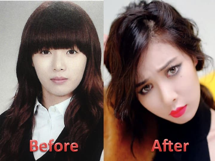 Before And After Plastic Surgery Eyes 1