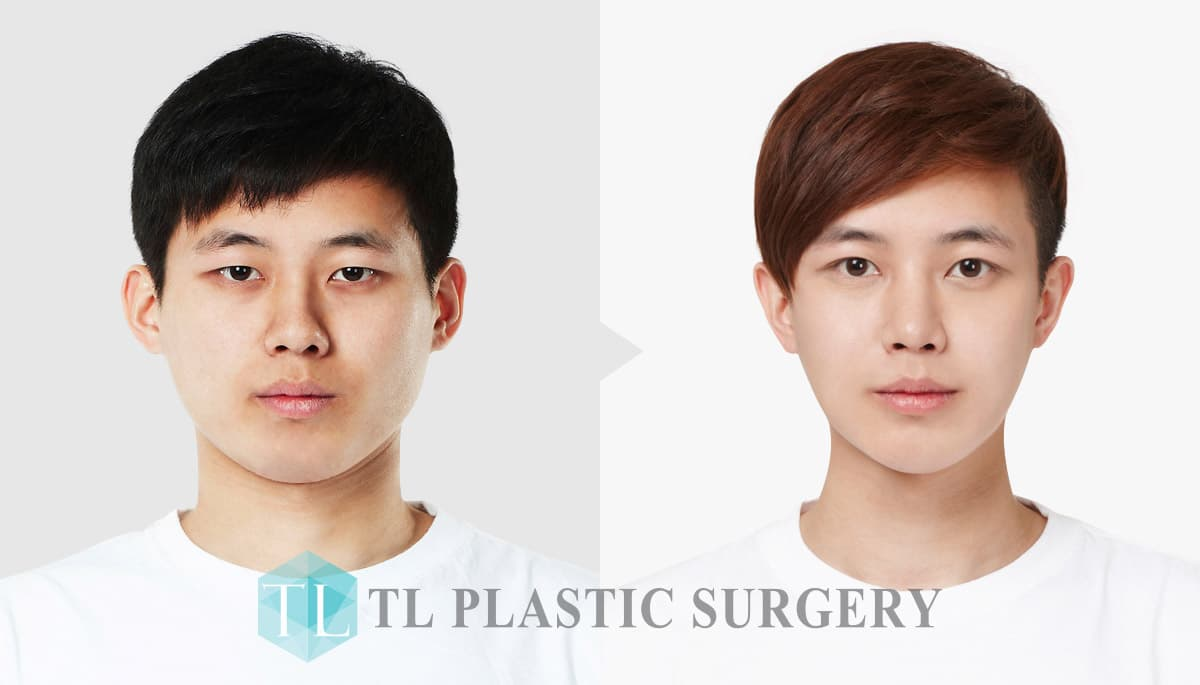 Before Plastic Surgery Process 1