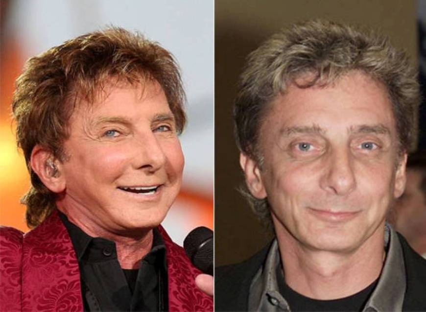 Bill Nye Plastic Surgery Before After 1