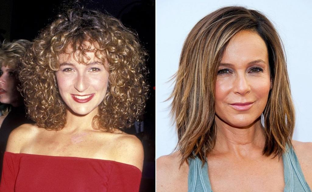Celeb Before After Plastic Surgery 1