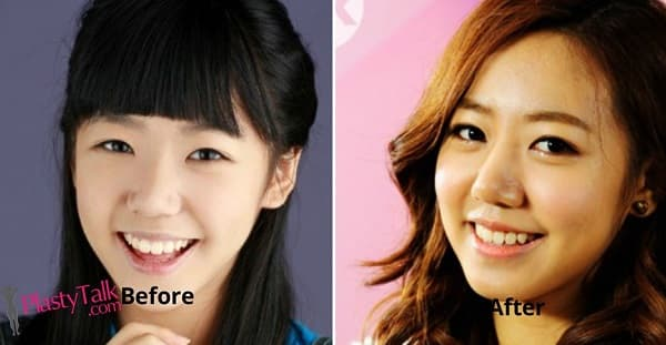 Eunji Before Plastic Surgery 1