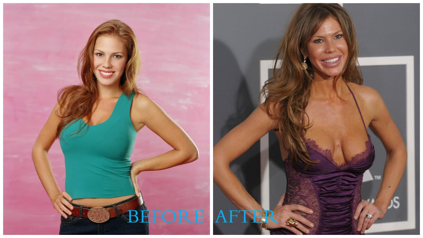 Eve Before And After Plastic Surgery 1