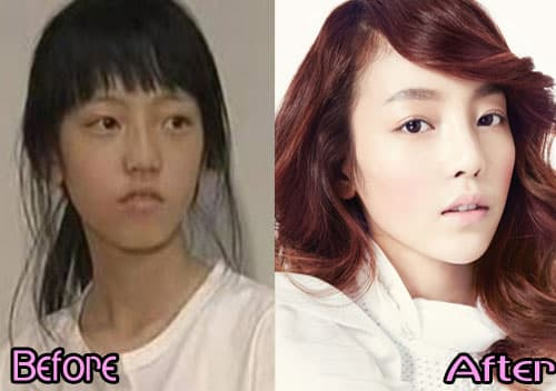 Goo Hara Before After Plastic Surgery 1