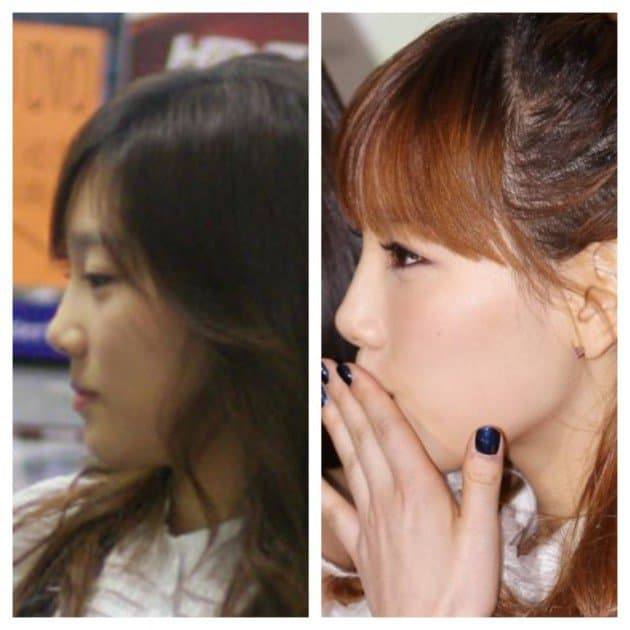 Heize Before Plastic Surgery 1