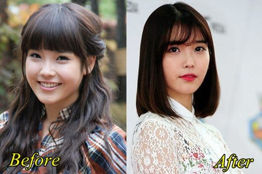 Iu Before After Plastic Surgery 1
