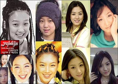 Jung Ryeo Won Before Plastic Surgery 1