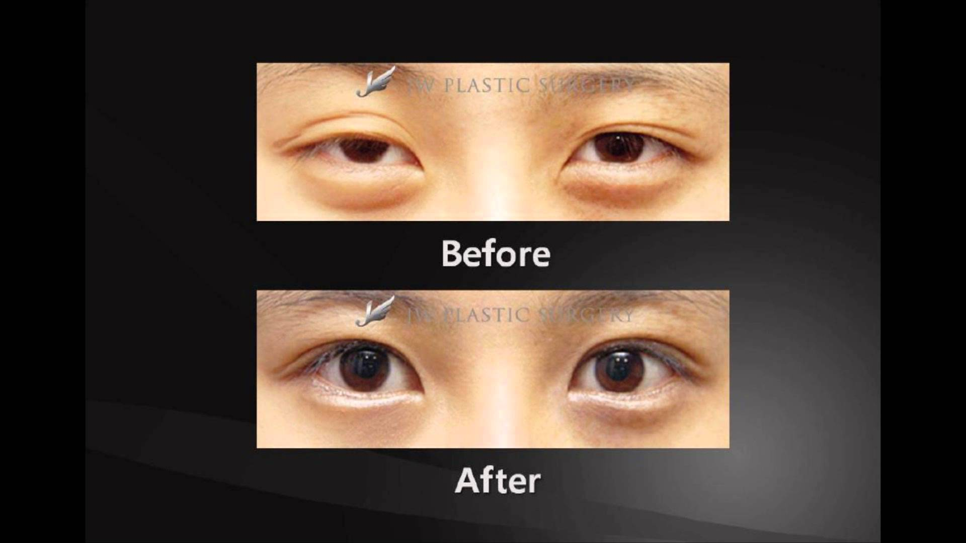Jw Plastic Surgery Before After 1