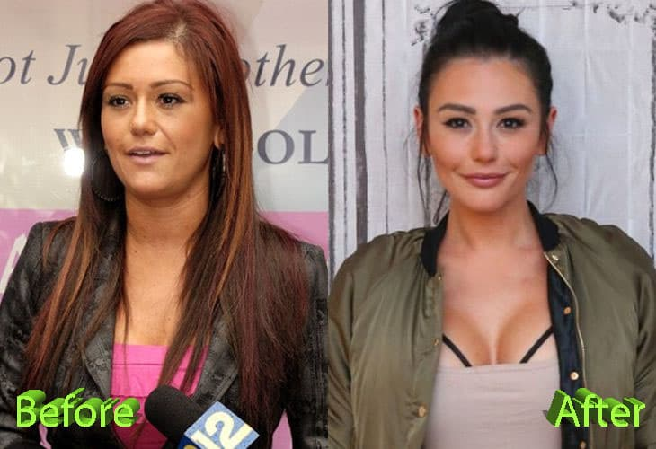 Jwow Before And After Plastic Surgery 1
