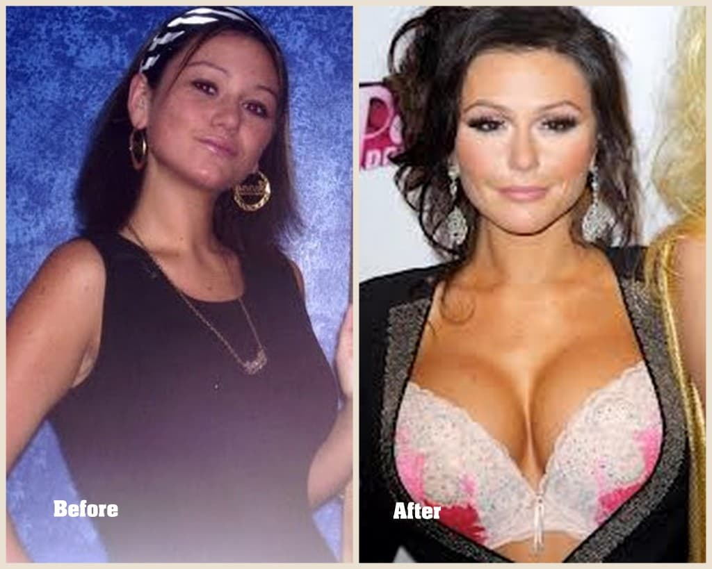 Jwoww Before After Plastic Surgery 1