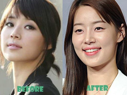 Jin Young Before Plastic Surgery 1