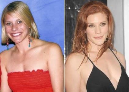 Katee Sackhoff Plastic Surgery Before After