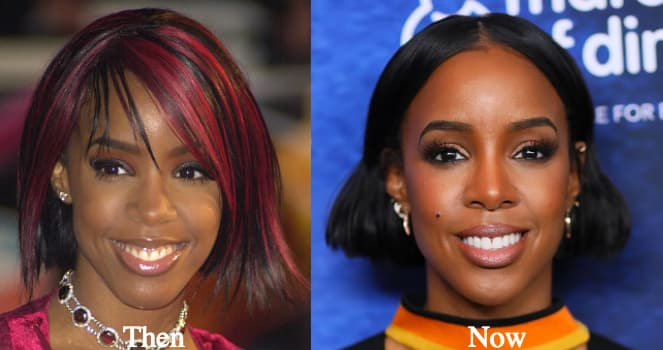 Kelly Rowland Before Plastic Surgery 1