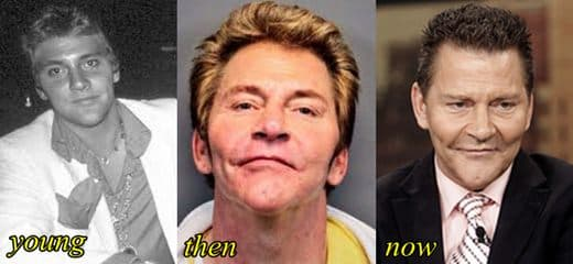 Liberace Before After Plastic Surgery 1