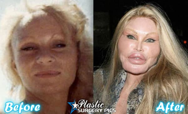 Plastic Surgery Cat Lady Before 1