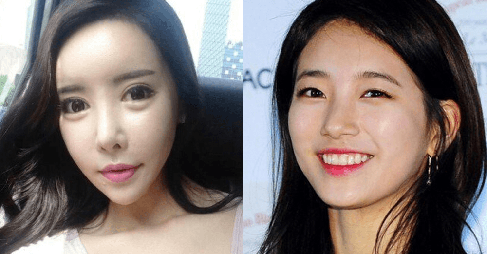 Sui He Before Plastic Surgery 1