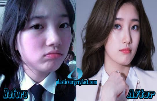 Suzy Before And After Plastic Surgery 1