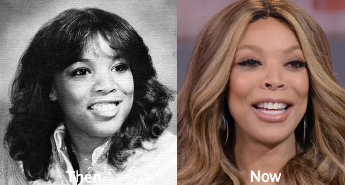 Wendy Williams Plastic Surgery Before 1