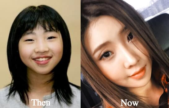 Wheesung Before Plastic Surgery 1