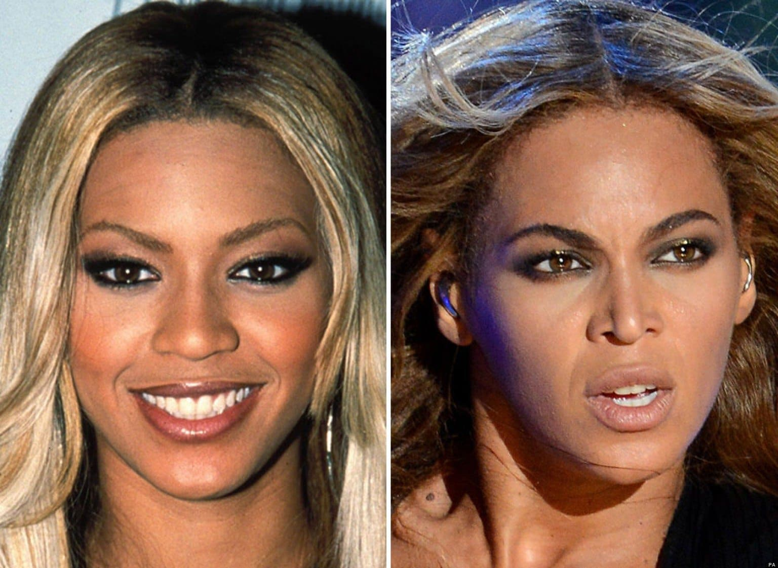 2 for 1 plastic surgery 1