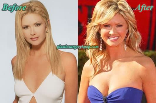 Nancy Odell Before Plastic Surgery 1