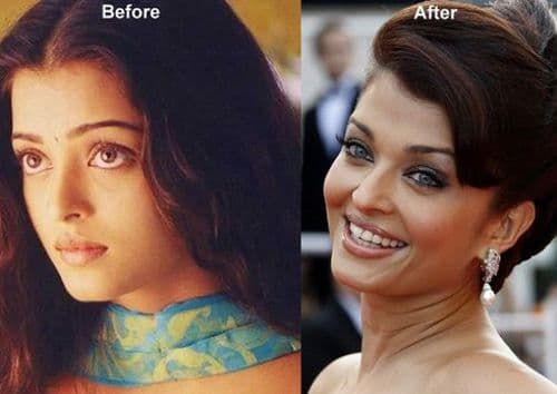 Nita Kuzmina Before Plastic Surgery 1