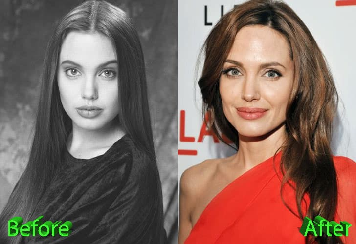 Angelina Plastic Surgery Before After 1