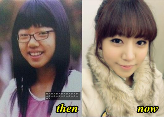 Bomi Before Plastic Surgery 1