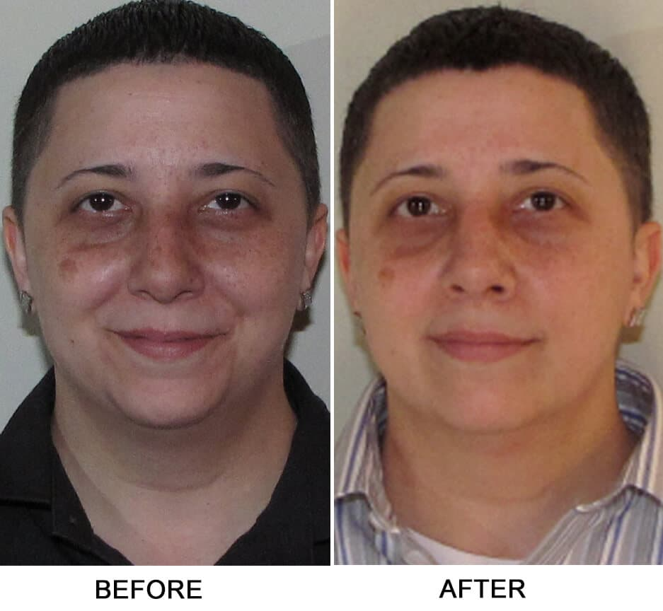 Dns Plastic Surgery After Before 1