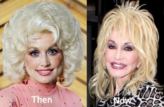 Dolly Partin Before Plastic Surgery 1