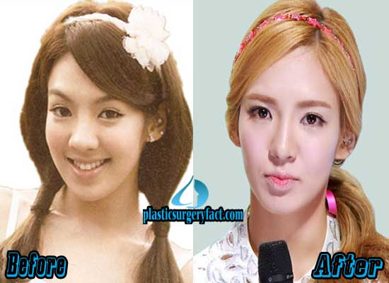 Hyoyeon Before After Plastic Surgery 1