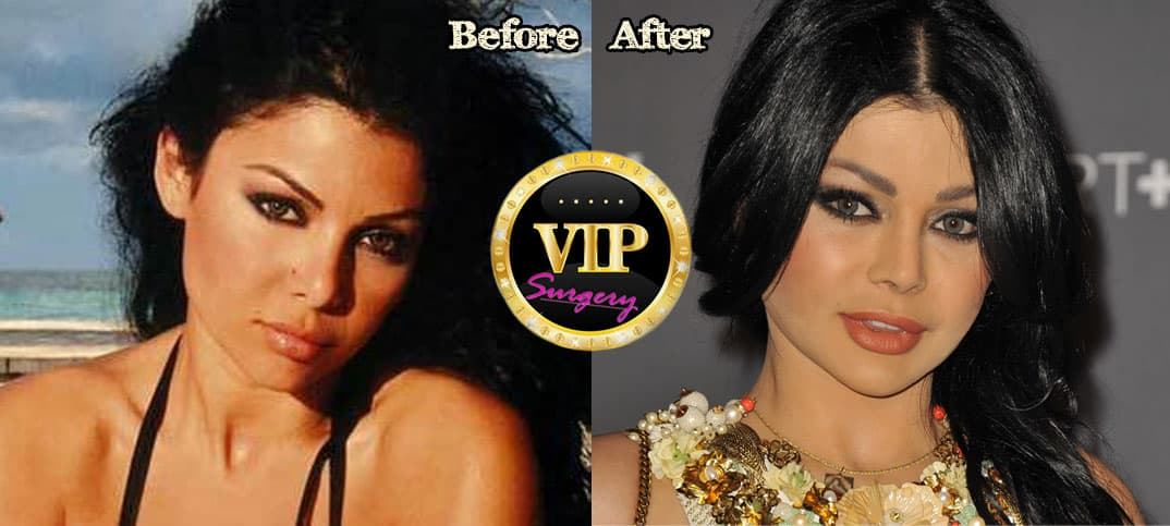 Haifa Before Plastic Surgery 1