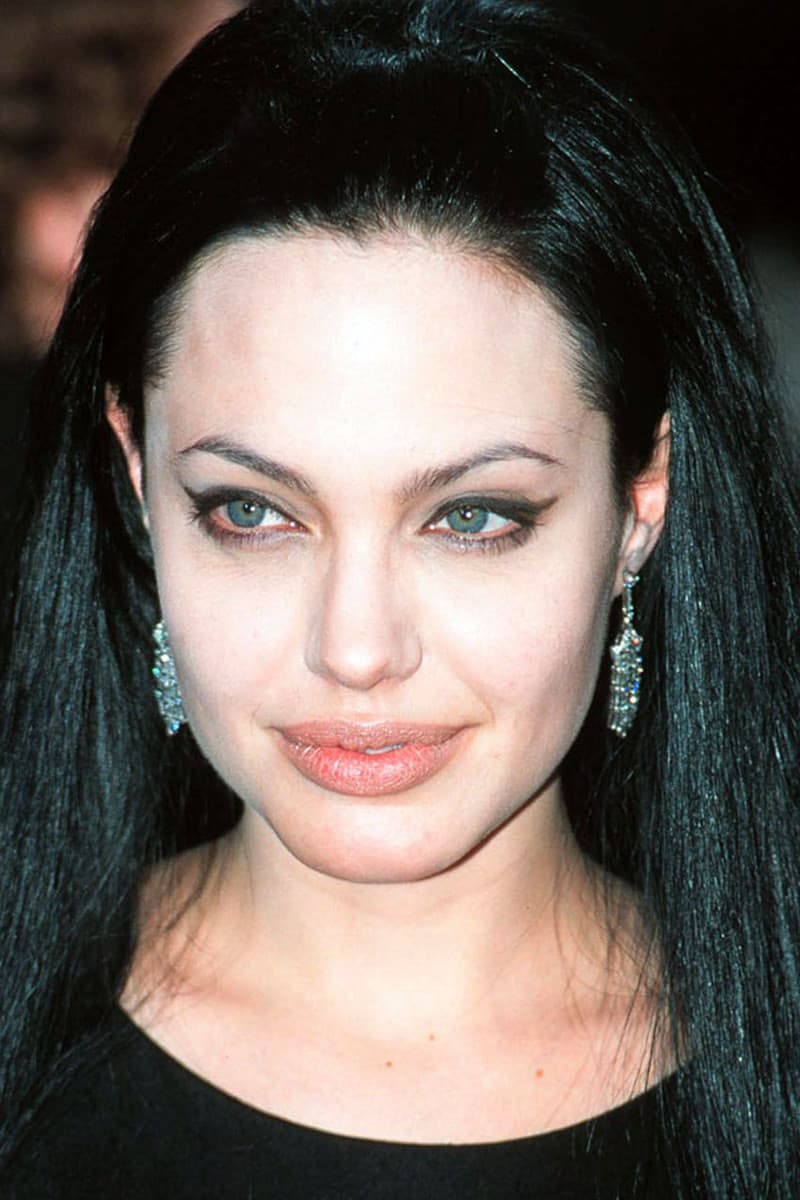 Jolie Before After Plastic Surgery 1