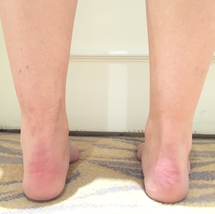 Plastic Surgery Ankles Before After 1