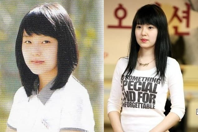 Plastic Surgery Irene Before After 1