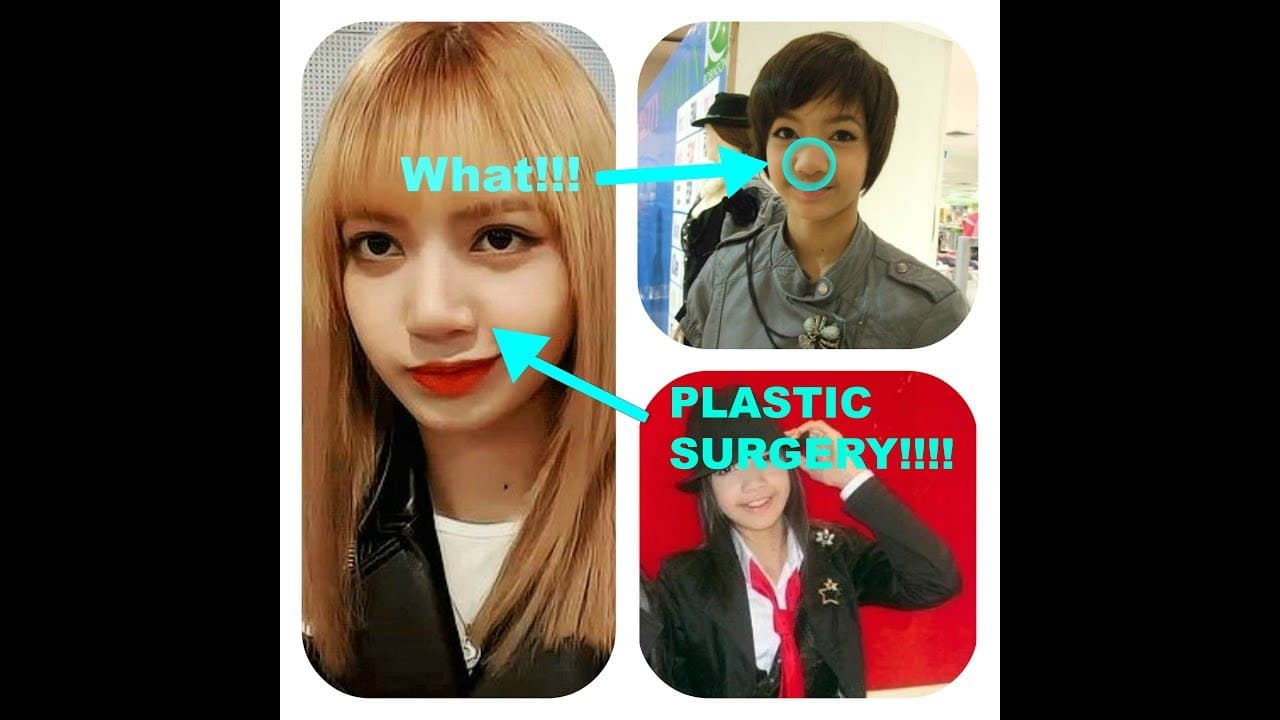 V Before Plastic Surgery 1