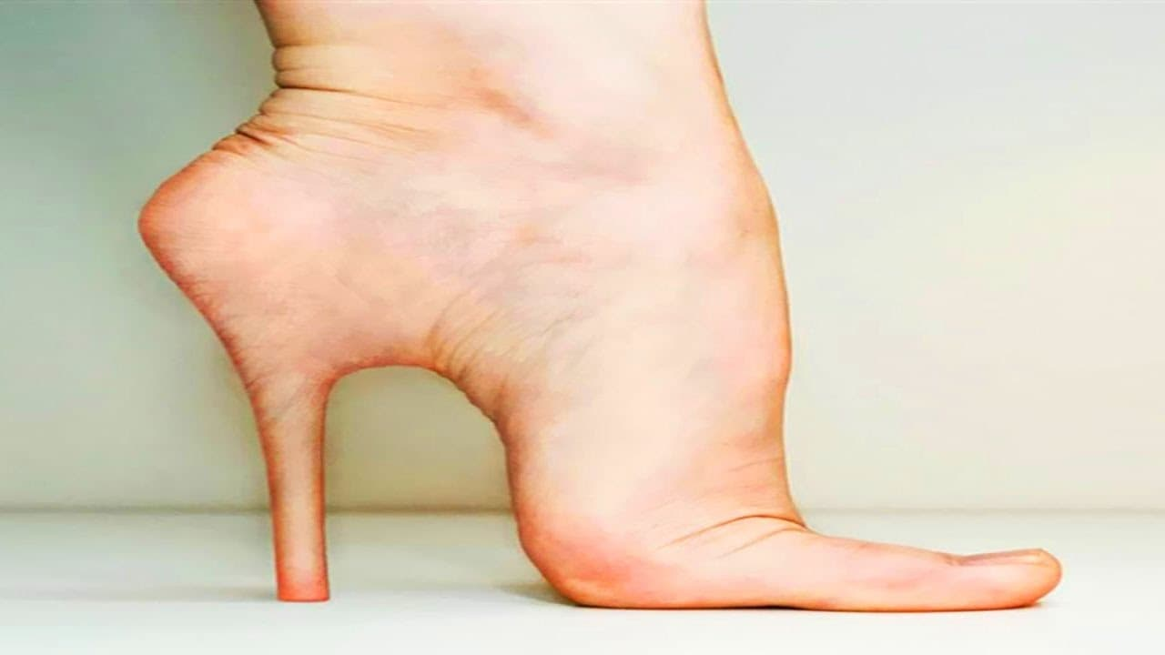 is there plastic surgery for feet 1
