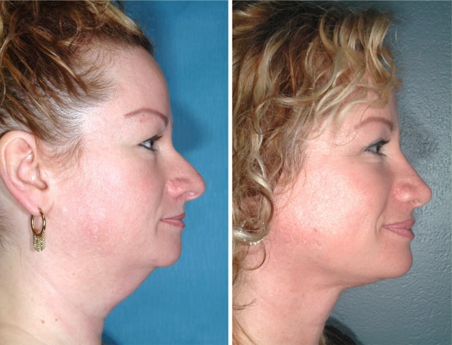 plastic surgery under chin fat 1
