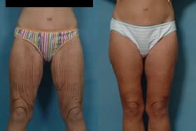 plastic surgery for loose skin on legs 1