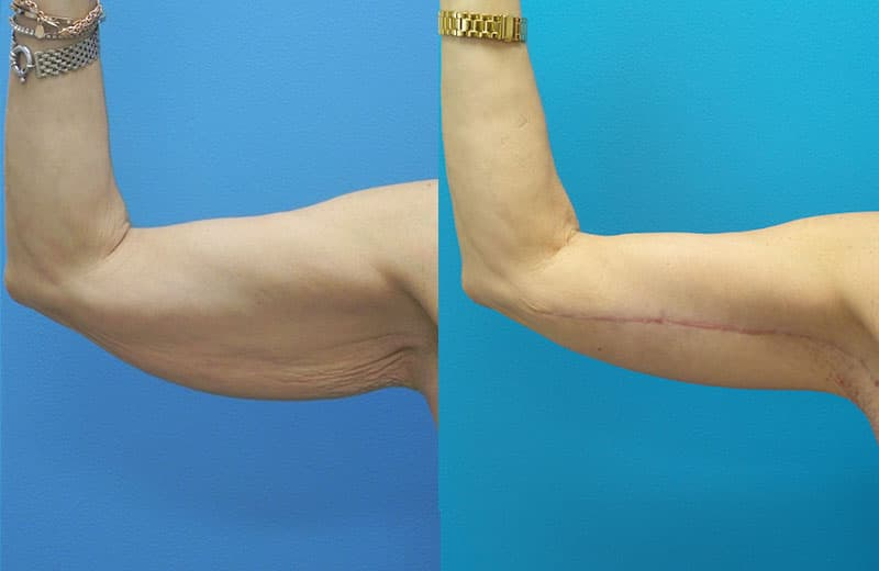 plastic surgery for underarm flab 1
