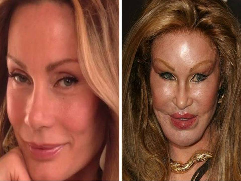 plastic surgery in the us 1