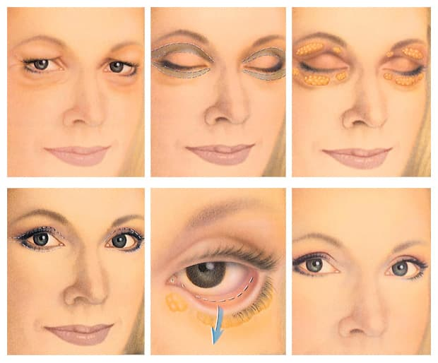 plastic surgery on eyes cost 1